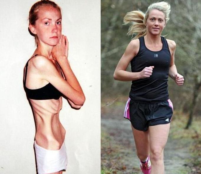 Болезни При Резком Похудении. Потеря веса: причины резкого снижения веса и что делать