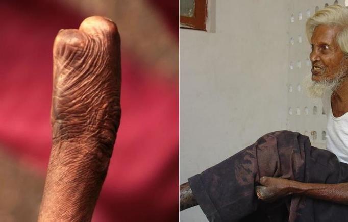 Leprozorium w Indiach