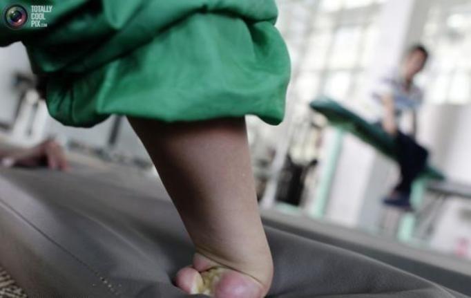 niepełnosprawni chińczycy