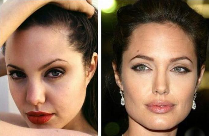 Alba operacje plastyczne jessica Kim Kardashian