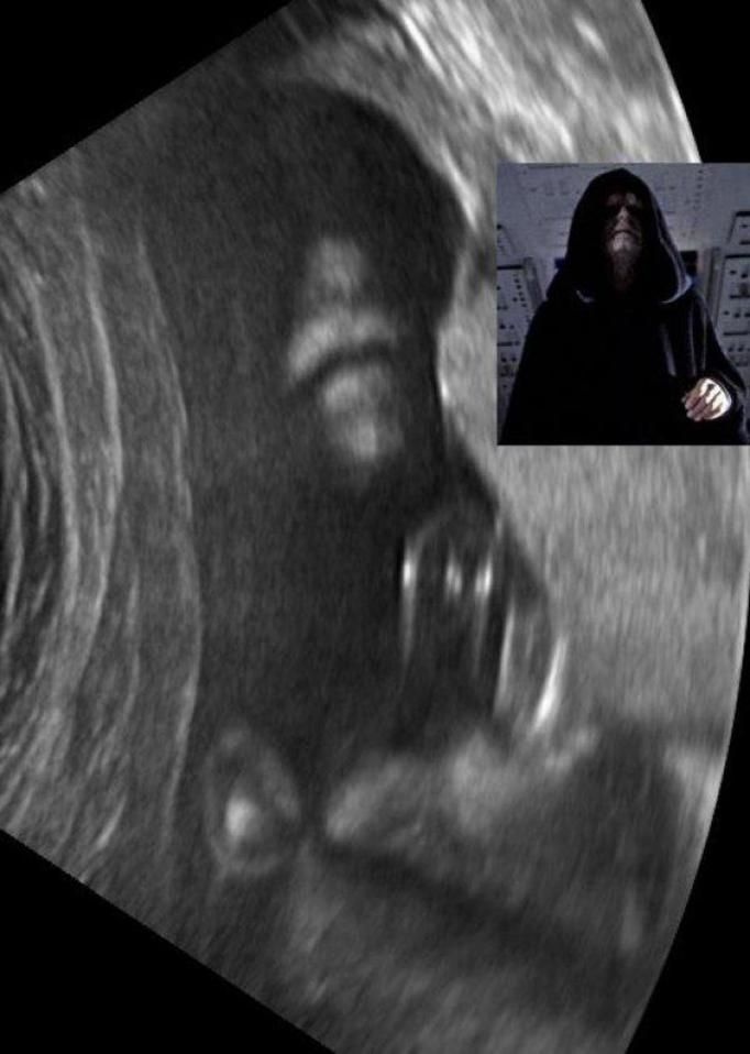 USG w ciąży