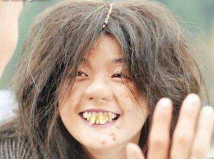Najbrzydsze zęby świata
