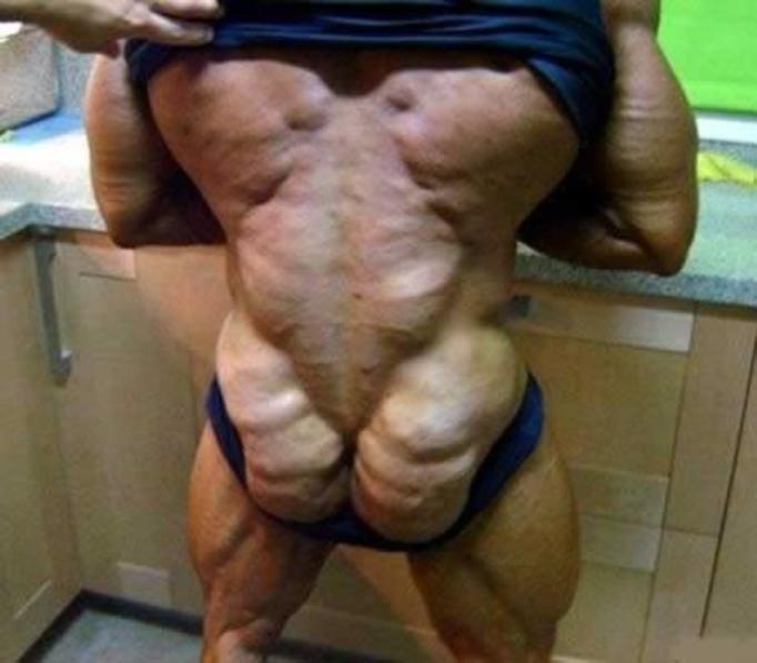 Ludzie o nietypowym kształcie ciała