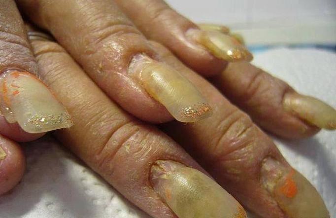 Najbrzydsze paznokcie świata