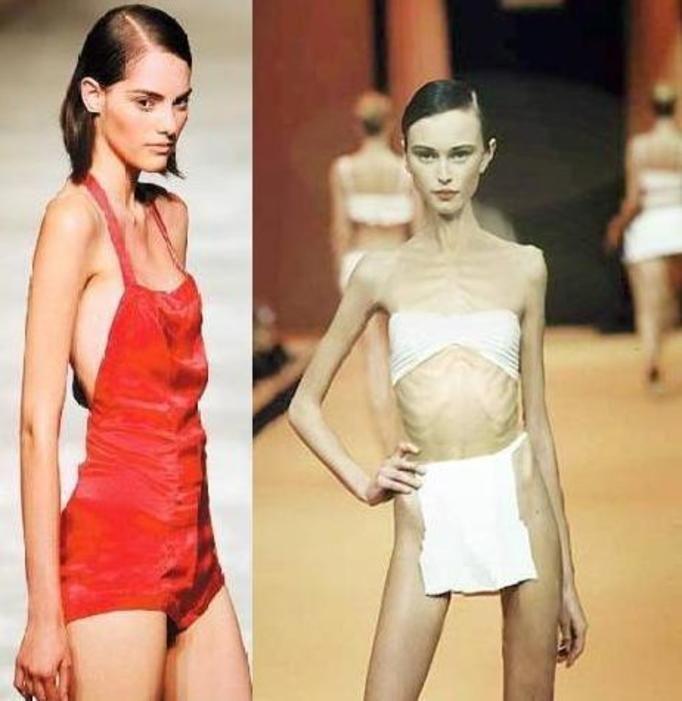 modelki z anoreksją