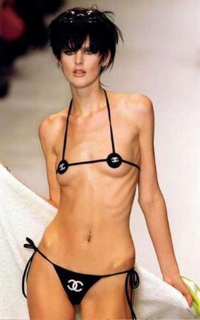 anoreksja na wybiegu