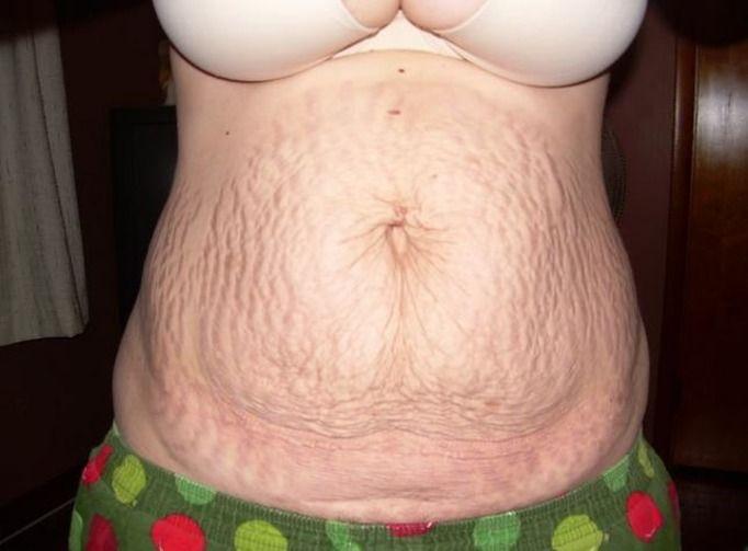 brzuch po ciąży