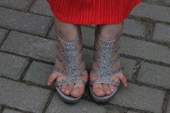 brzydkie stopy