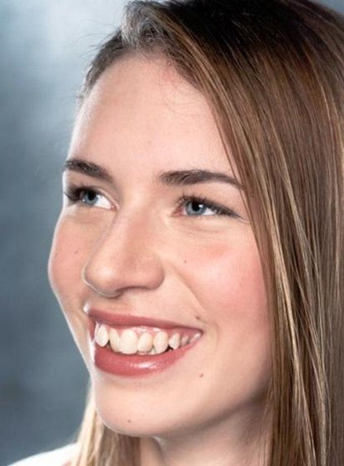 Некрасивые зубы у девушки