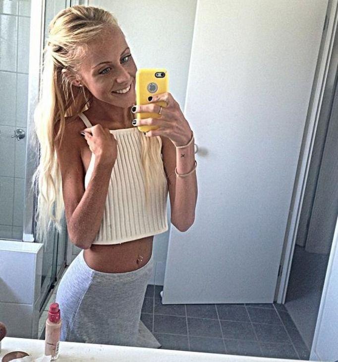 walka z anoreksją