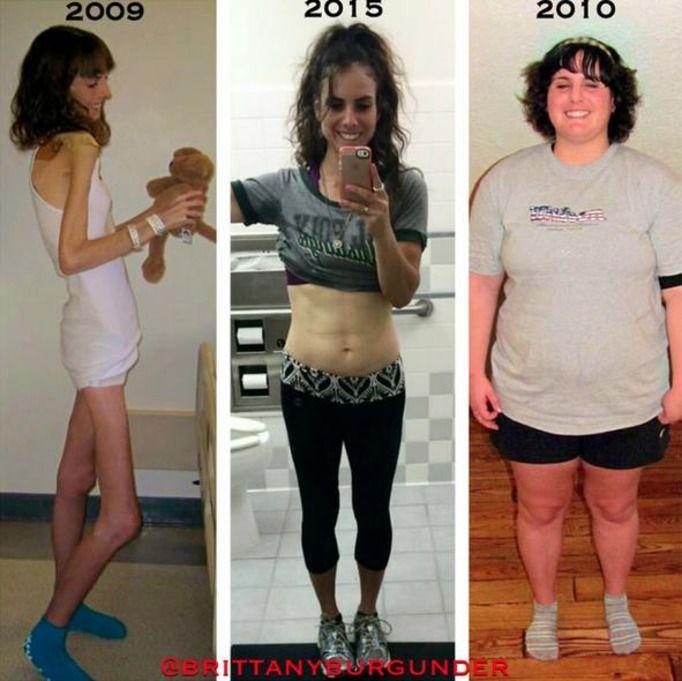 История похудения анорексичек