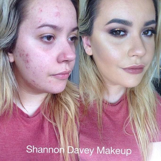 Makijaż skóry trądzikowej