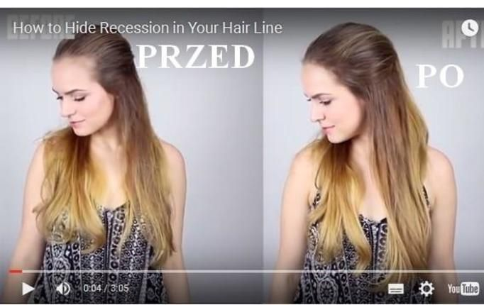 Jak zamaskować łysinę