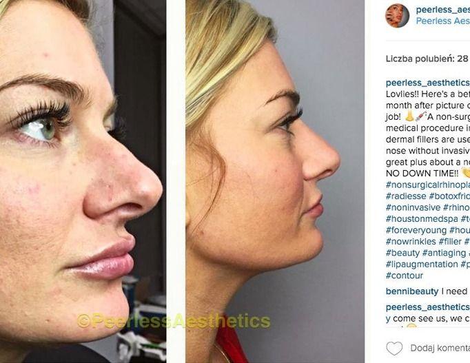 nieoperacyjna korekta nosa