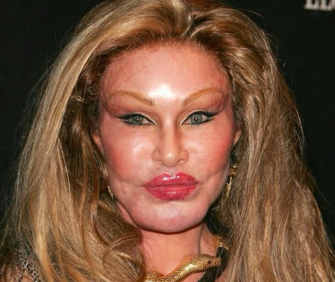 Jocelyn Wildenstein