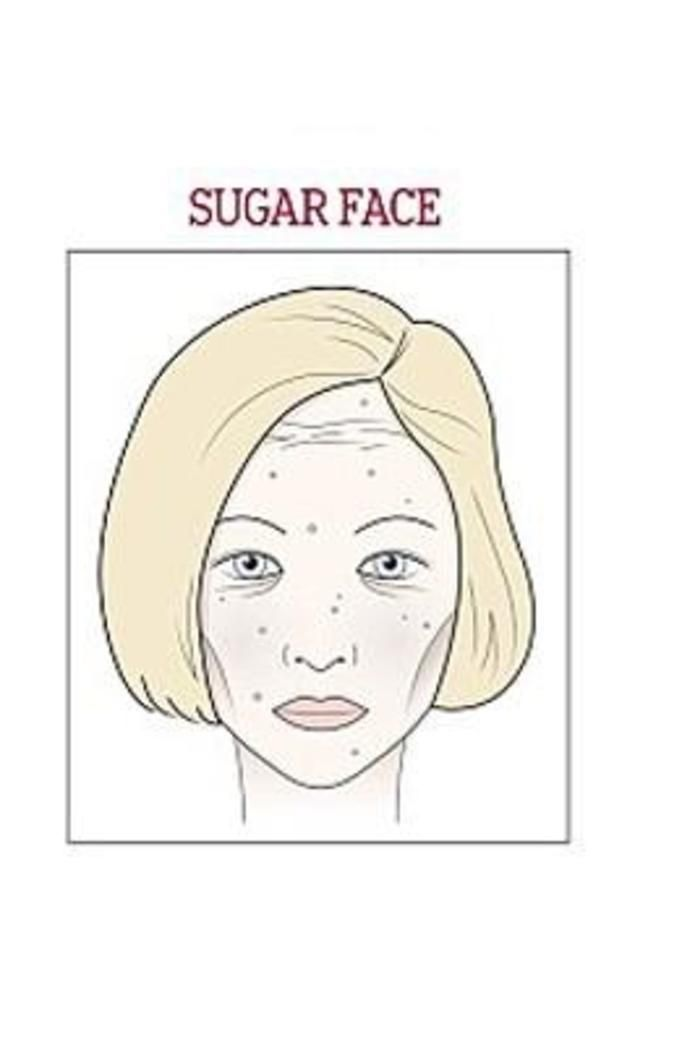 twarz cukrowa