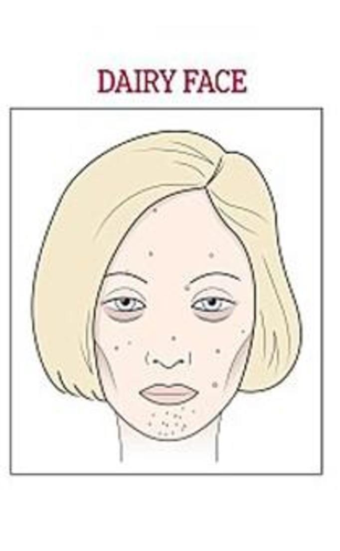 twarz nabiałowa