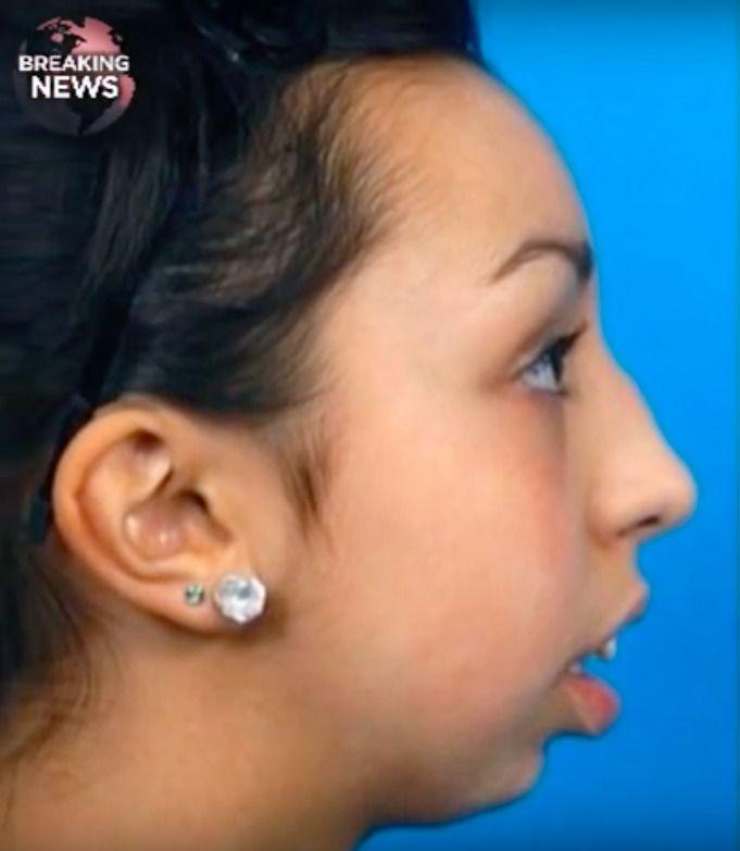 deformacja twarzy