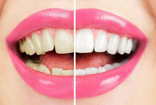 jak wybielić zęby