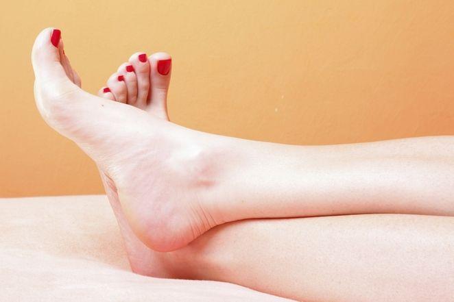 pękające pięty