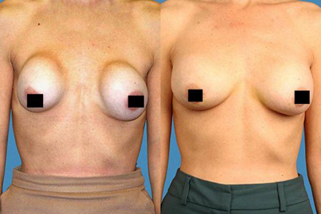 operacja plastyczna piersi