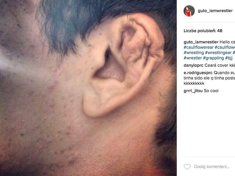 Ucho zapaśnika