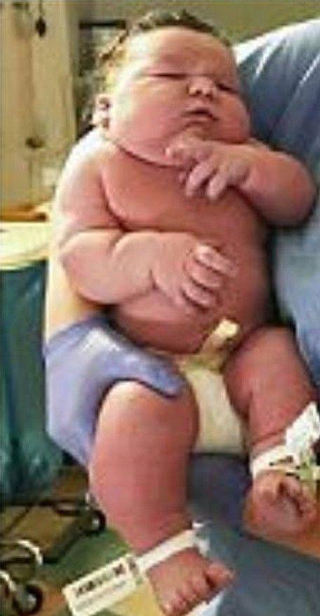 gigantyczny noworodek