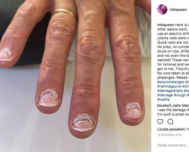 zniszczone paznokcie