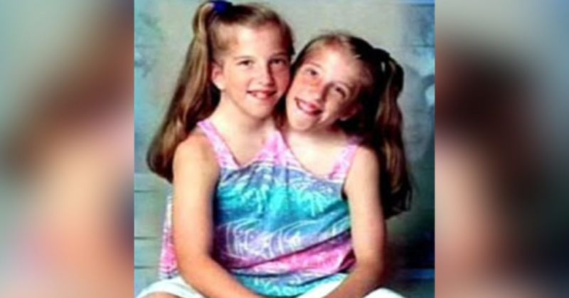 Abby i Brittany Hensel