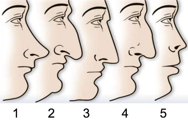 kształt nosa