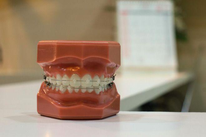 czy mam ładne zęby