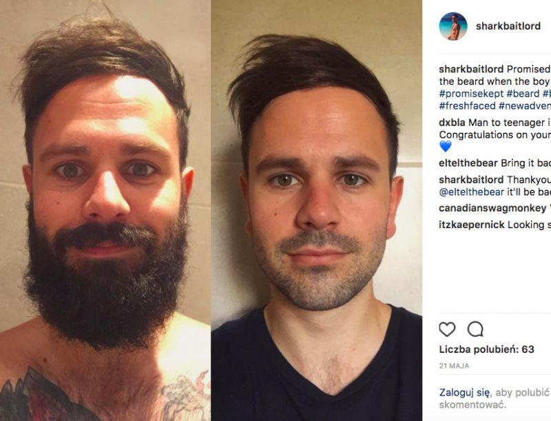 zgolenie brody