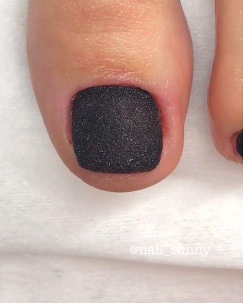 grzybica paznokci u stóp