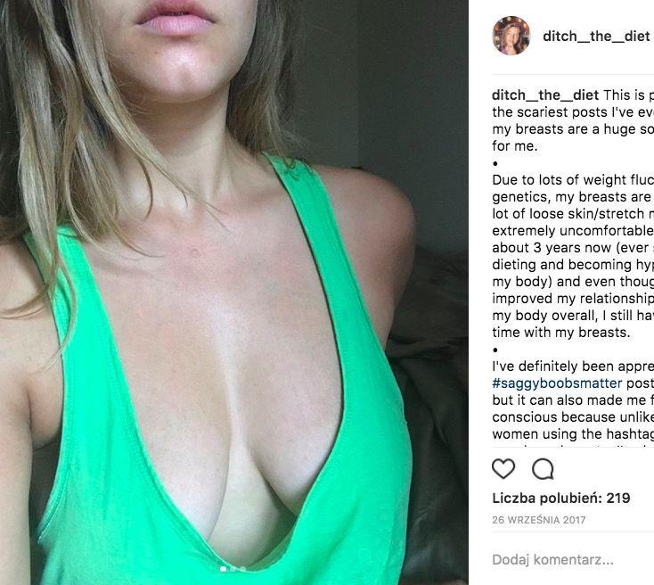obwisłe piersi
