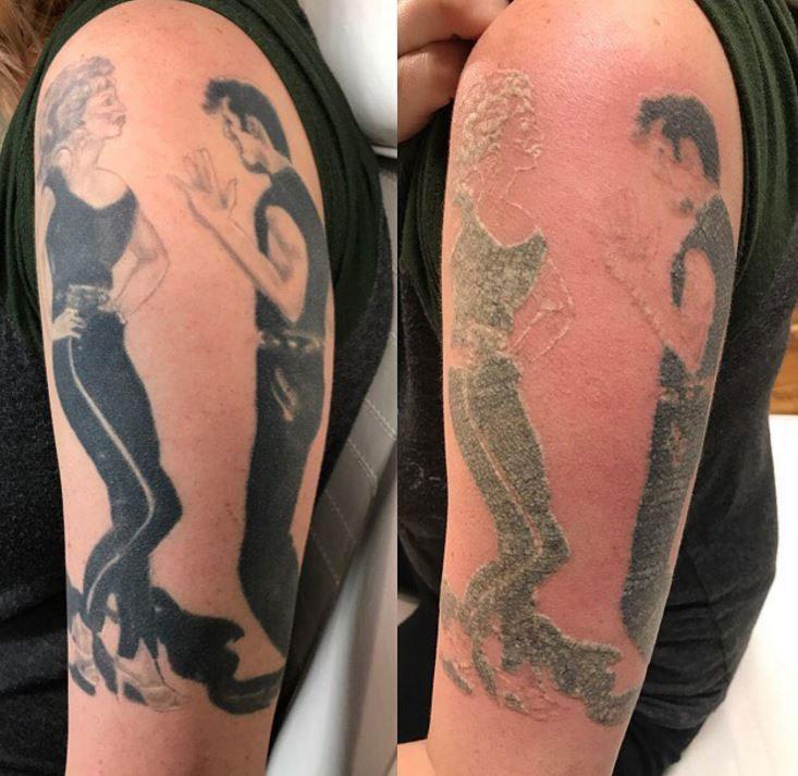 Usuwanie Tatuażu Przed I Po Jak Usunąć I Jakie Są Efekty